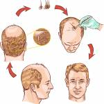 hair loss Profile Picture